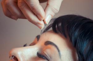 Augenakupunktur Halle (Saale) Leizig, nach Prof. Boel, eine wirksame Therapie bei Augenerkrankungen, in der Praxis Nadja Grunenberg bei Halle (Landsberg)