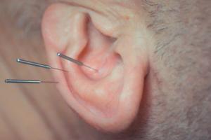 Ohr-Akupunktur Halle Saalekreis - sehr gut bei Erschöpfung und auch zur Suchtbehandlung in Halle an der Saale