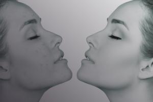 Nadja Grunenberg, Heilpraktikerin Halle Saale und in Berlin Charlottenburg - Schwerpunkt: Hautprobleme, Haarprobleme, Nägel
